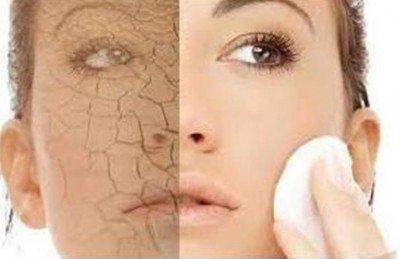 Cum sa ingrijim pielea uscata pe timpul iernii – trucuri esentiale de ingrijire a pielii uscate